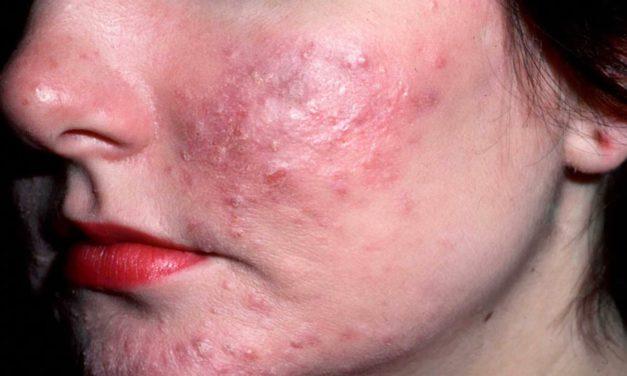 Tratamiento Natural para Acne Rosacea en Lima